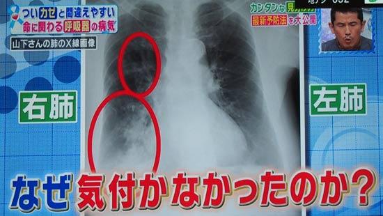 肺炎の原因は細菌、激しい咳、鋭い胸の痛み