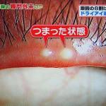 不安定涙ドライアイはマイボーム腺の詰まり、涙の油不足