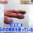 ばち指は肺がんは気管支拡張など、爪の不調、がたがたの筋が縦か横かで健康上に大きな違いがあるのです