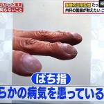 がたがた爪の筋、縦と横の違いは?ばち指は肺に問題