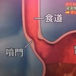 成長期の脂で逆流性食道炎、胸焼け予防法