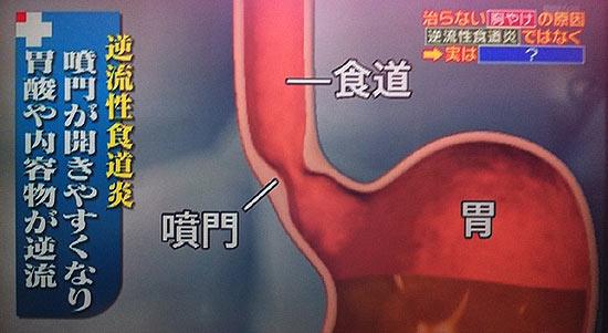 胸焼け=逆流性食道炎