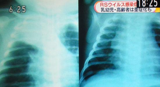 乳幼児の風邪で緊急で病院に連れて行く判断、怖いRSウイルス感染症