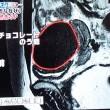 月経時の出血が多い子宮筋腫に右卵巣腫瘍の治療法