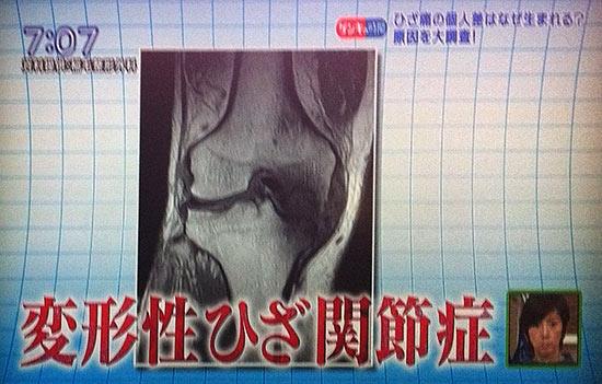 膝痛はO脚が原因。椅子でまっすぐ綺麗な脚に