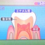 歯が黄色くなる理由、象牙質、着色、変色