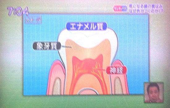 歯は三層構造。白く透き通るエナメル質、黄色い象牙質、神経