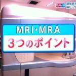 MRIとMRAのポイントは左右対称、白い斑点、血管に狭窄やこぶ