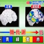 正常な部分はグレー、代謝が低い部分は、青緑黄赤で表現されます