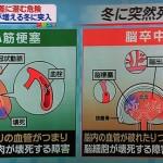 寒暖差突然死の前兆とヒートショック対策と予防