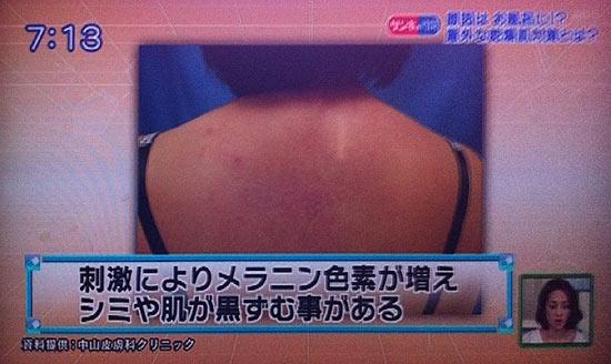 肌の黒ずみはお風呂が原因?