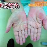 手の荒れと腰痛で寝たきりの病気はSAPHO症候群