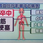 高血圧の正常値、上を10下を5下げると脳卒中は40%減る