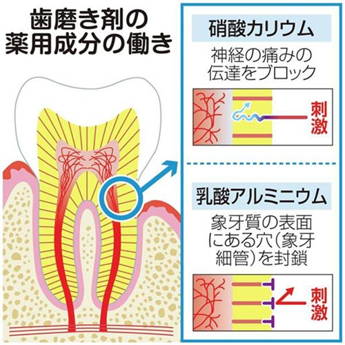 歯磨き粉に硝酸カリウムと乳酸アルミニウム入りの商品