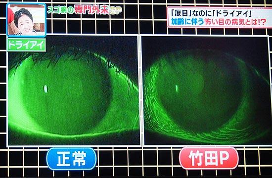 目のシワの病名は結膜弛緩症