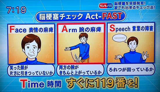 アクトファスト、脳梗塞のチェック方法Act-FAST