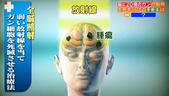 ファーストオピニオン全脳照射