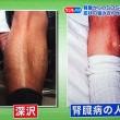 尿の泡立ち+足のむくみ=腎臓病の確立50%