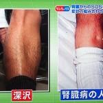 腎臓が悪いがわかる、下痢、のどの痛み、泡立ち、足のむくみ、血尿