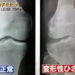 軟骨の秘密とO脚の対策とつまづく防止