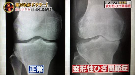 変形性膝関節症、軟骨と膝が痛くなる関係