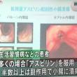 小腸潰瘍が治るレバミピドの量は?