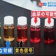 尿が赤い、泡、10回、寝ている時に4~5回で腎不全の可能性