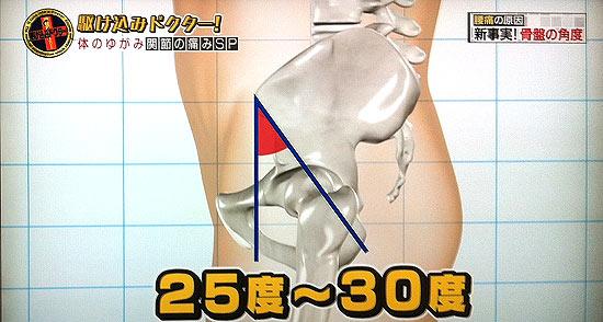 骨盤の角度と腰痛の関係