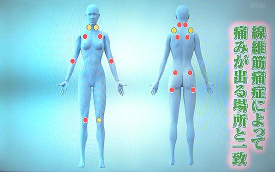 繊維筋痛症の特徴は全身の18箇所に痛み