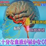 物が二重に見える味付けが濃くなるめまいは頚骨脳底動脈循環不全