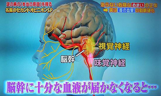 頭を動かしただけで視覚障害や味覚障害が起こる
