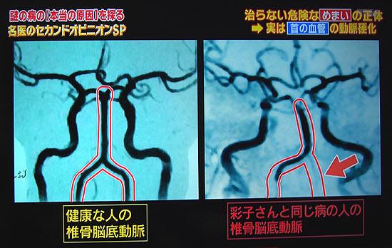 比較、頚骨脳底動脈循環不全