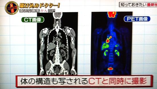 PET検査とは?がん検診の受診時期