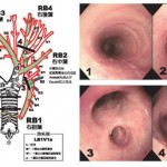肺癌の検査は苦しい、肉眼で見る