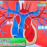 肺高血圧症の種類、肺の血管が半年以上詰まる病気CTEPHに新薬