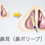 鼻づまりと鼻ポリープの症状、特徴、手術