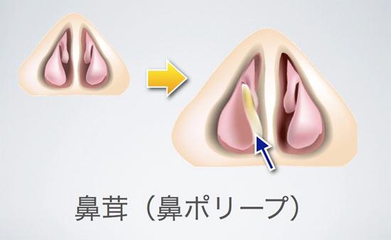 鼻ポリープは副鼻腔の粘膜が炎症を起こして腫れるもので