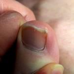 巻き爪の原因は深爪。爪が曲がるケア方法