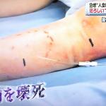 壊死が筋肉と皮膚が1時間10cm進むスピードの溶連菌感染症とは?