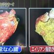 エイリアン脂肪がついた心臓の比較