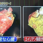 エイリアン脂肪がついた心臓の画像の比較