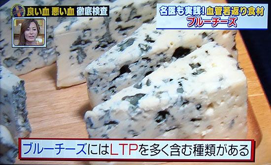 ブルーチーズが血管若返り?白い血の正体は油、食後高脂血症