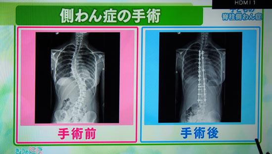 レントゲン画像。本来真っ直ぐな背骨が曲がる病気