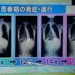 脊柱側わん症の発症年齢は9歳?