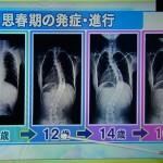 脊柱側わん症の発症年齢は9歳?手術の時間は?