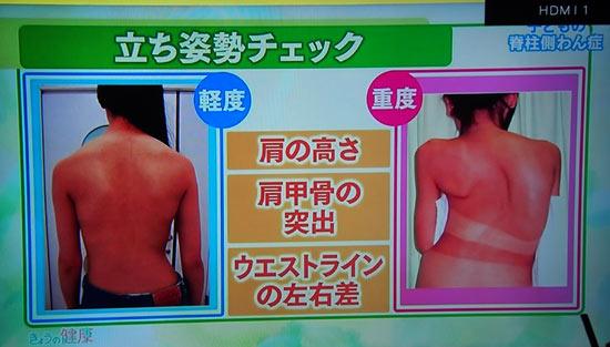 脊柱側わん症の前屈みチェック