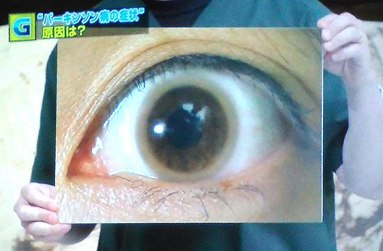 写真、胴が目の周りの角膜周辺に吸着