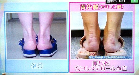 アキレス腱が太い、黄色いしこりの病名は高コレステロール血症
