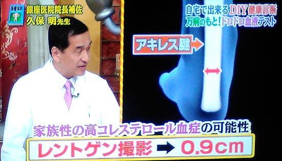 アキレス腱が太い病気は高コレステロール血症