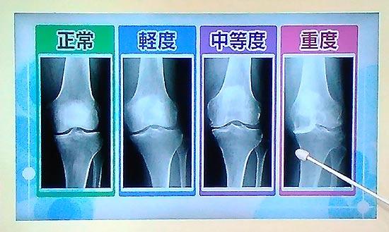 膝のレントゲン 軽度中度重度